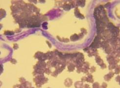 Badanie PCR w kierunku filarii – od teraz wynik półilościowy