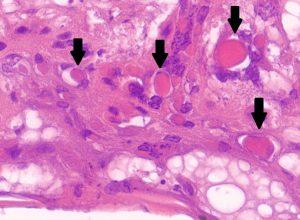Rycina 2: Biopsja skóry. Obecność keratynocytów z kwasochłonnymi wtrętami w cytoplazmie (strzałki). 40x HE.